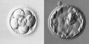 Day 3 Embryo Transfer vs Blastocyst Transfer